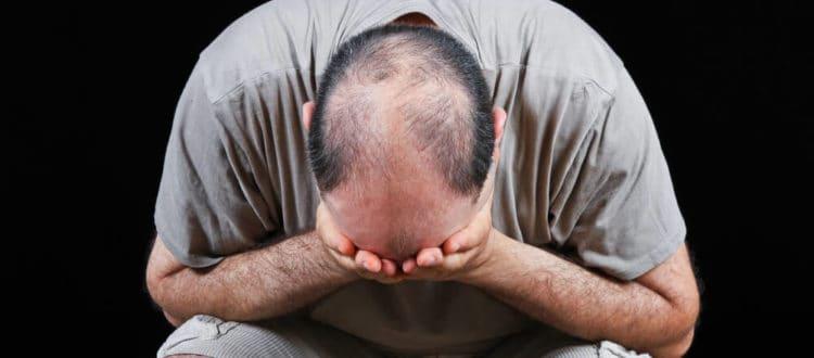 Losing Hair Can Seriously Damage Self-Esteem