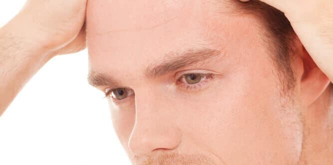 Uneven Hairline