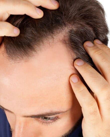 Hair Transplant Fail