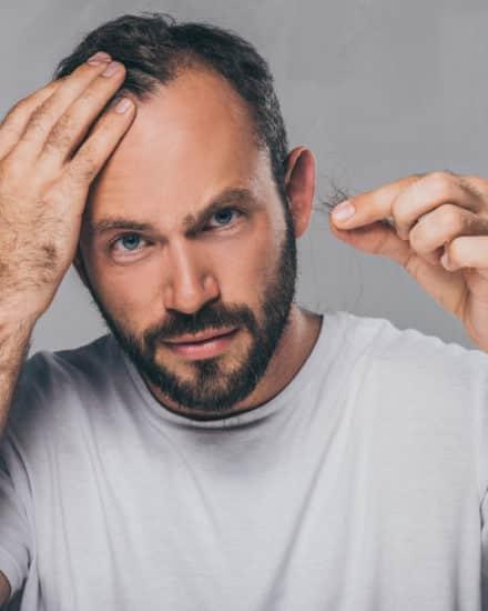 Male Hair Loss vs. Female Hair Loss